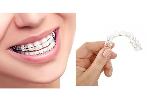 Esempi di apparecchi Ortodontici
