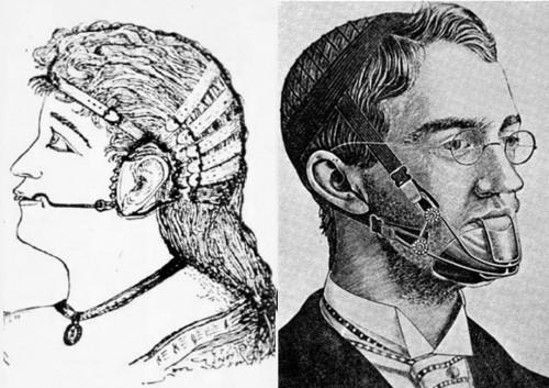 antichi prototipi di apparecchi ortodontici