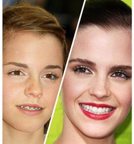 Emma Watson prima e dopo l'ortodonzia