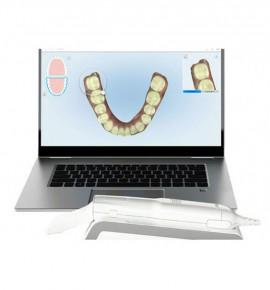 Un computer e uno scanner digitale itraorale
