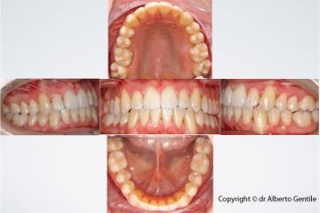 Fine del trattamento ortodontico