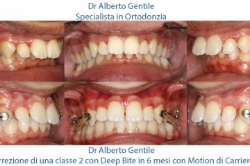 Una seconda classe con deep bite trattata con Motion di Carriere di classe seconda