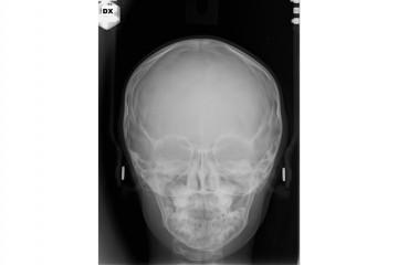 Teleradiografia postero-anteriore