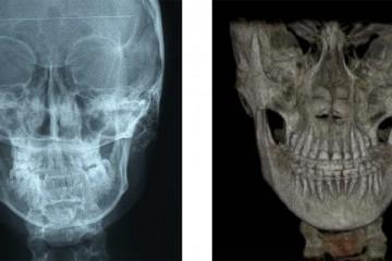 le radiografie effettuate prima dell'intervento - RX postero-anteriore e una Come Beam (RX 3D) dl massiccio facciale.