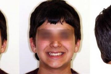Alcune delle foto extraorali che l'ortodontista scatta per la diagnosi