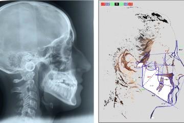 Teleradiografia e tracciato cefalometrico effettuato prima di iniziare la terapia.