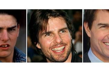 Tom Cruise con e senza apparecchio.