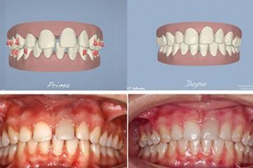 caso con diastemi (spazio tra i denti) nelle due arcate - prima e dopo.