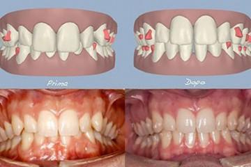 caso con morso coperto eccessivo (i denti superiori coprono eccessivamente i denti inferiori) -  prima e dopo.