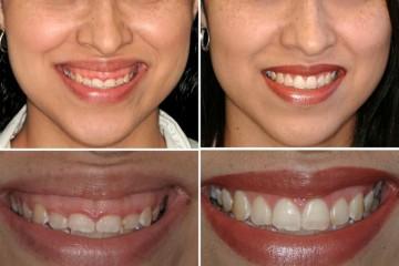 Esempio di correzione del sorriso gengivale, prima e dopo la correzione.